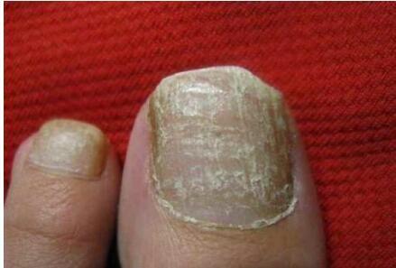 武汉哪里有治甲沟炎的 治疗灰指甲多少钱 武汉市江岸区甲益生手足护理经营部
