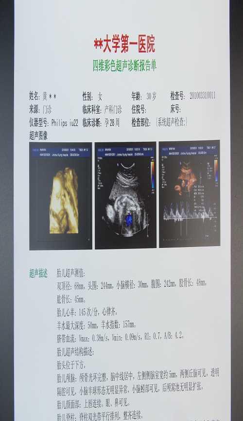 蓝基骨折X光片纸_绝缘片相关