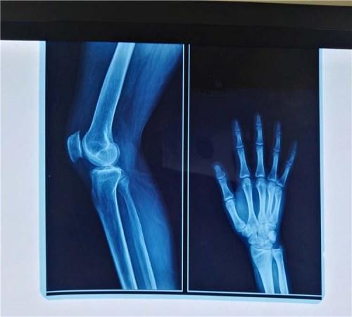 蓝色骨折X光片打印纸_手指骨折相关