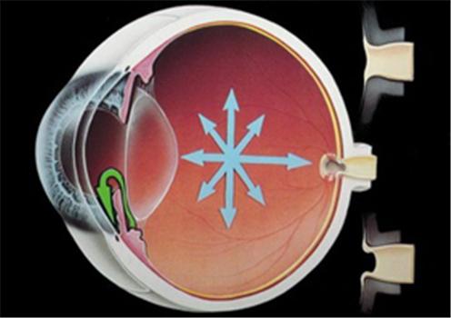 激光手术近视眼多少钱_永州医疗保健服务手术费用-长沙爱尔眼科医院