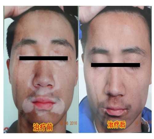 怎么治療白癜風_河南醫療保健服務哪家好-原陽師寨鎮五柳集村衛生所