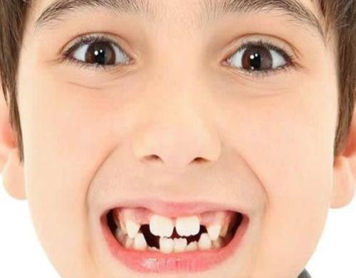 成都哪里看兒童牙科 兒童牙科椅相關